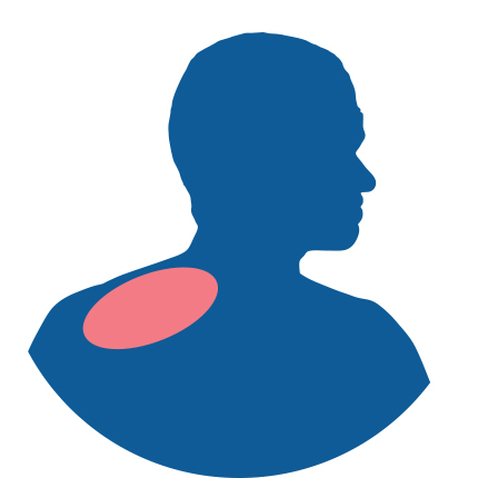 Icon for Shoulder Pain